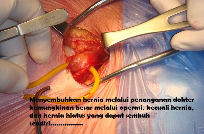 Ilustrasi Operasi Hernia