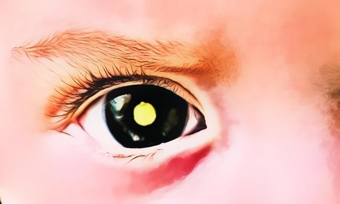 Image result for penyakit retinoblastoma