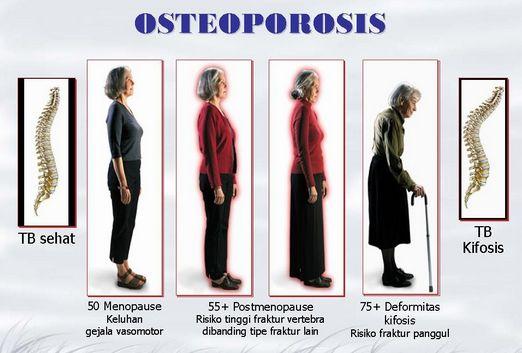 Osteoporosis pada wanita